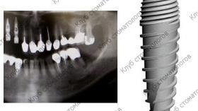 Green Implant System Tec Респект