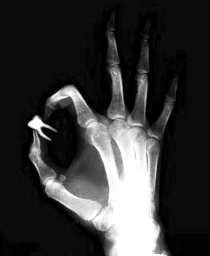 Рентген руки стоматолога с зубом