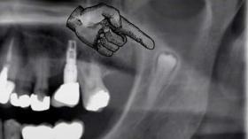 Зубные прятки