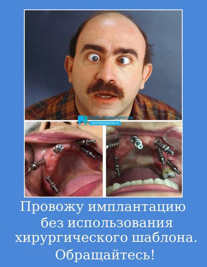 Провожу имплантацию без использования хирургического шаблона