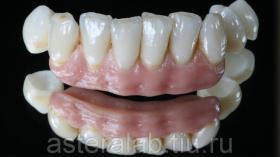 Диоксид циркония - коронки из оксида циркония