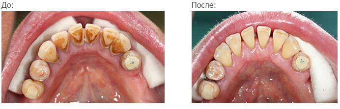 Проведение профессиональной гигиены полости рта