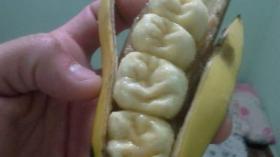 Банановые зубы