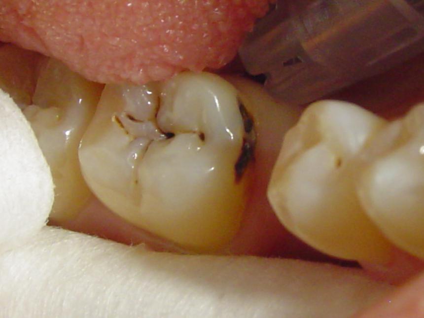 Протезирование отсутствующего зуба (до)