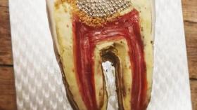 Зубной пирог 2