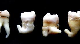 Зубное кунг-фу