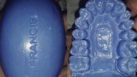 Мыльные зубы 9