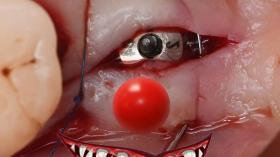 Клоун - имплантат