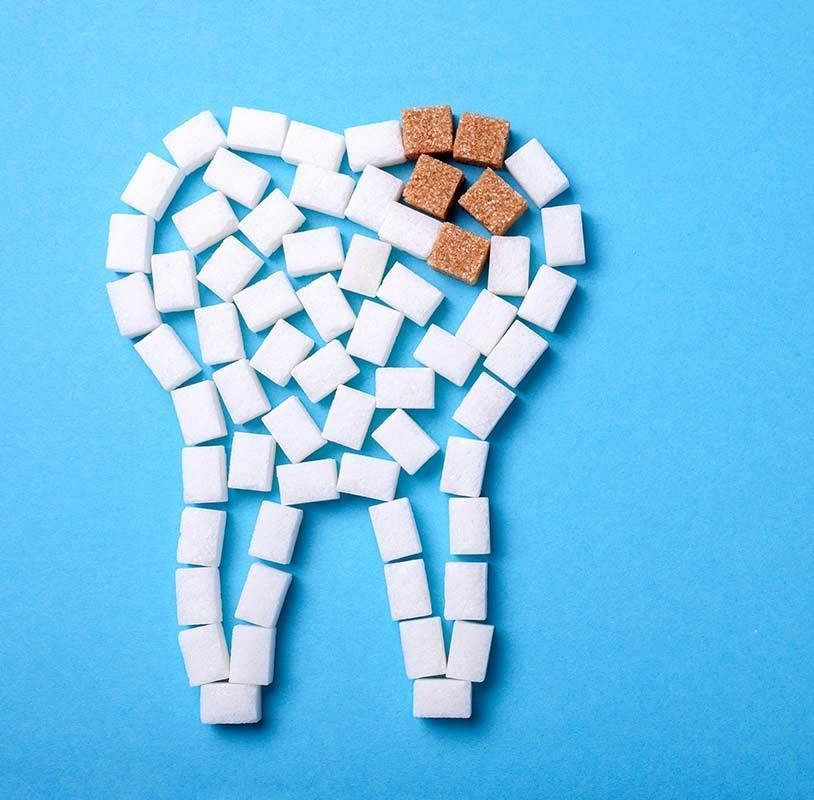 Сахарный зуб с кариесом