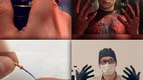 Человек-паук и стоматолог