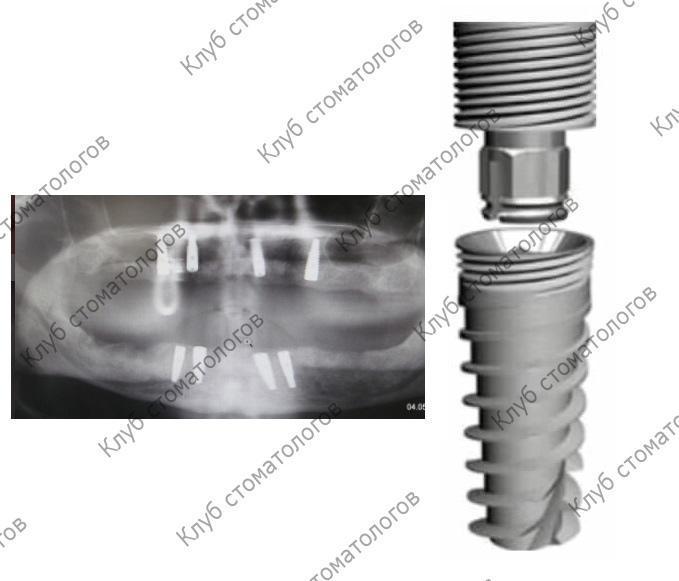 Green Implant System Tec Универсал плюс
