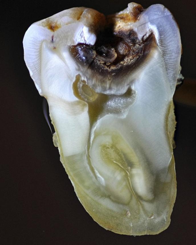 Срез зуба, пораженного кариесом 2