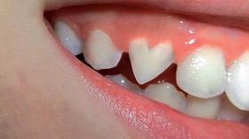 Зубная любовь 14