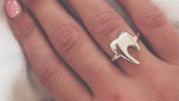 Кольцо для стоматолога 4