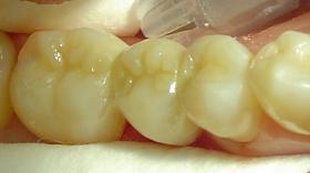 Протезирование отсутствующего зуба (после)