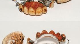 Зубной протез с зубным камнем