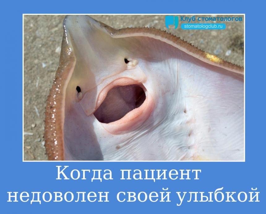 Когда пациент недоволен своей улыбкой