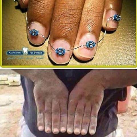 Выравниваем пальцы