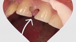 Зубная любовь 1