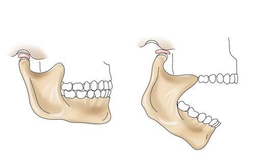 Нижней сустав челюсти разработка мышц коленного сустава