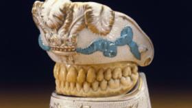 Держатель протеза (18 век, Франция)