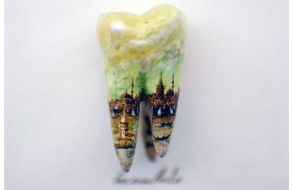 Микроарт на зубе