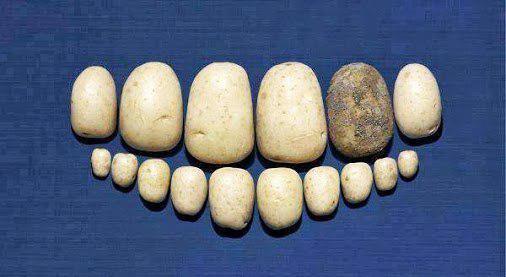 Зубной камень 2
