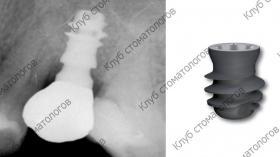 Leone Exacone Short Implant
