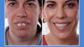 Photoshop? Стоматолог!
