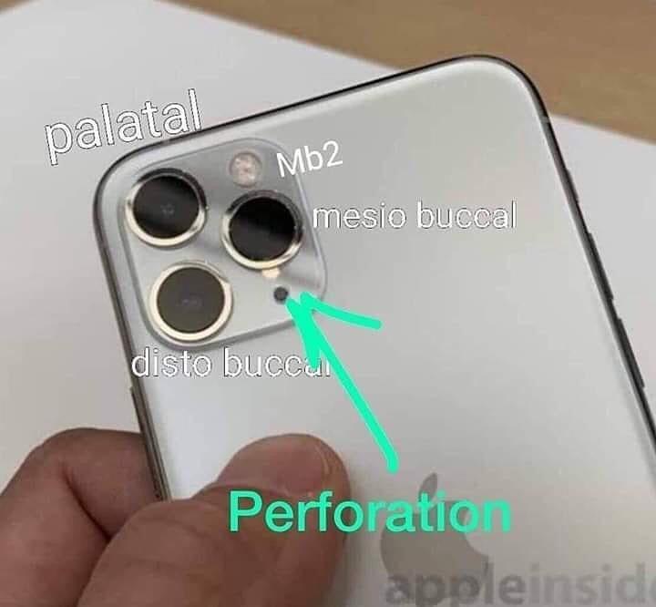 Эндодонтический анализ iPhone 11
