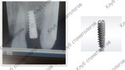ADIN Dental Implants Touareg RP