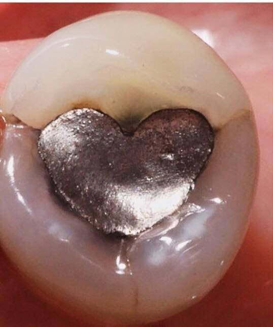 Когда стоматолог влюблен