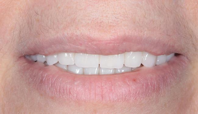 Тотальная реабилитация пациентки коронками из диоксида циркония и винирами E.max на зубах и имплантатах