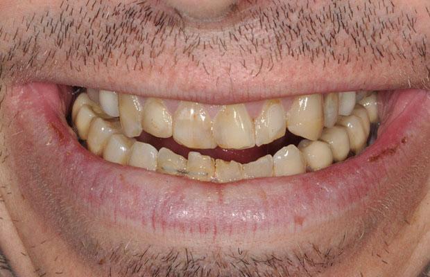 Междисциплинарный подход в реабилитации пациента со скелетной аномалией прикуса (ортодонтическое лечение с тотальным протезированием)