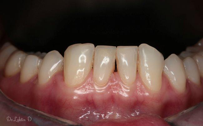 Реконструкция зубного ряда. Трансформация.