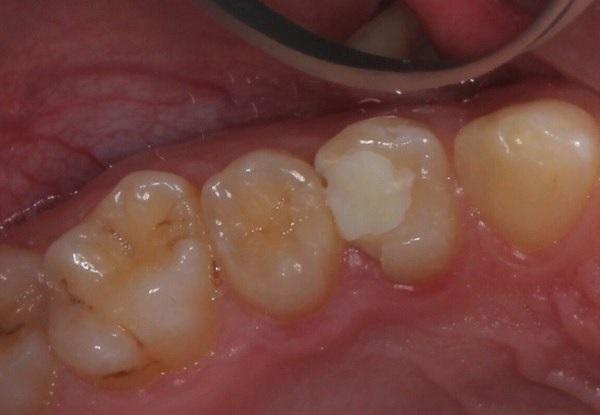 Восстановление скола депульпированного зуба цельнокерамической реставрацией