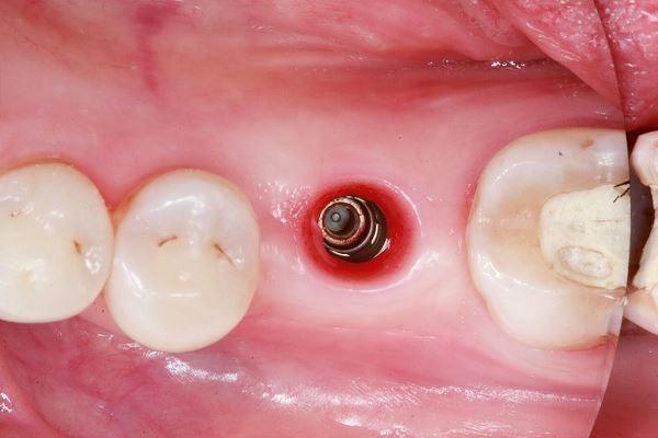 Коррекция мягких тканей вокруг имплантатов, установленных на уровне кости