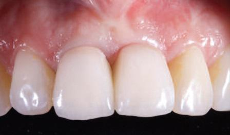Восстановление посттравматического дефекта зуба в переднем отделе нижней челюсти по технике Khoury