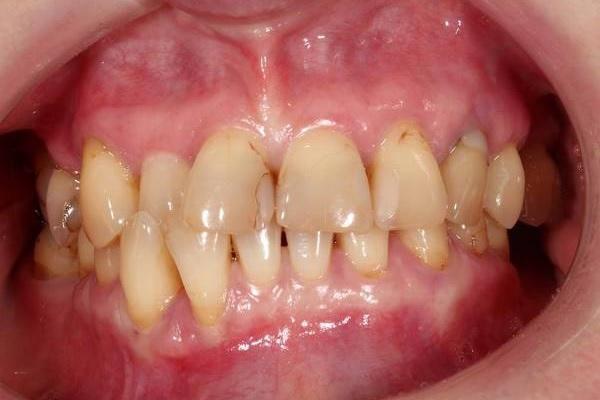 Возможности цифровых технологий при комплексной реабилитации стоматологических пациентов
