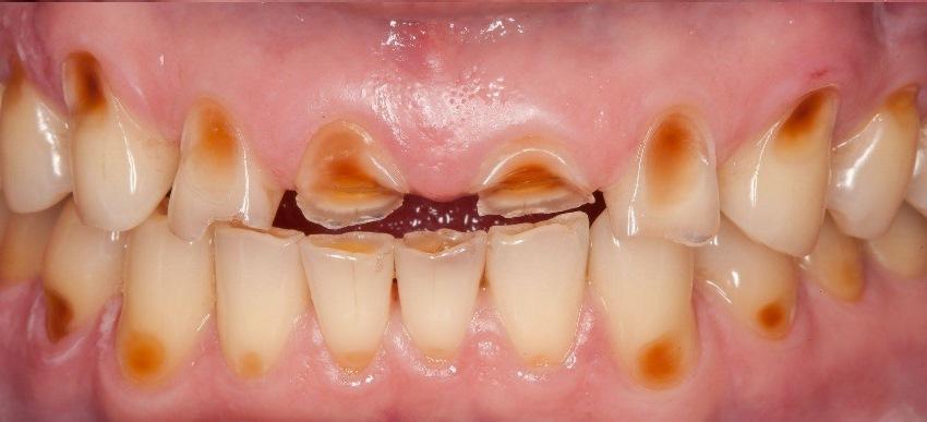 «Цифровые» зубы во фронтальном отделе верхней челюсти