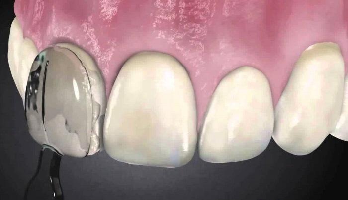 Новый подход к реставрации фронтальных зубов