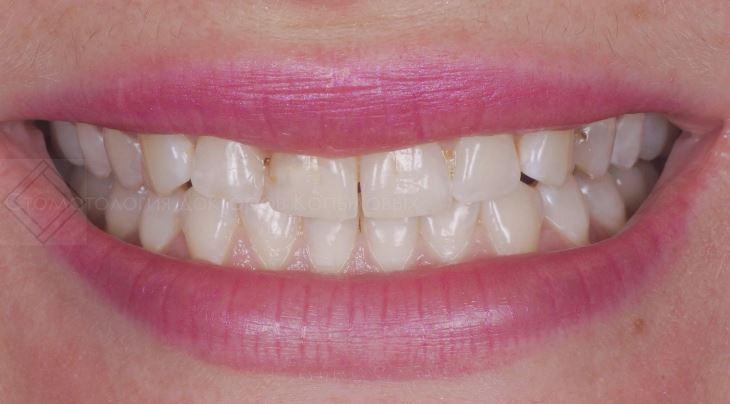 Наращивание режущих краёв с помощью композитного материала во фронтальном отделе верхней челюсти