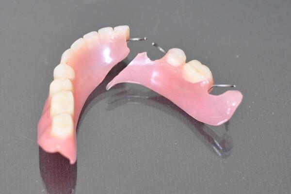 Хроническое травмирование слизистой рта от съемного зубного протеза может способствовать развитию рака ротовой полости