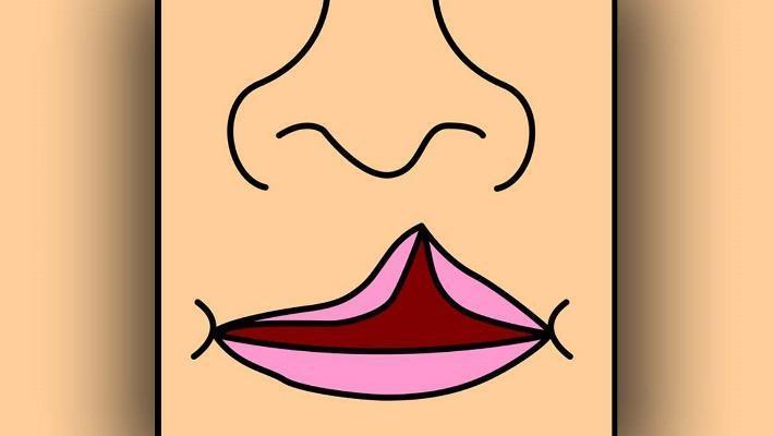 Установили генетический механизм, вызывающий врожденную расщелину верхней губы и неба
