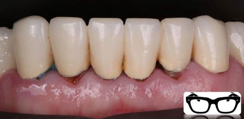 Сохранение «безнадежных» зубов