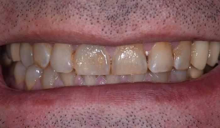 Реабилитация улыбки и функции у пациента со стираемостью зубов