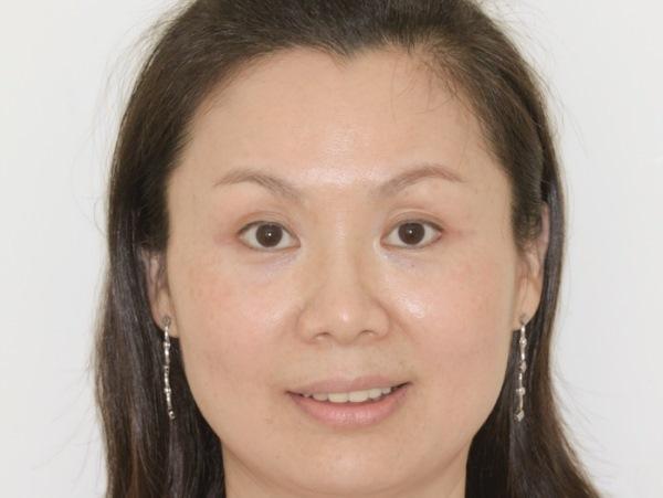 Комплексный подход к лечению синдрома короткого лица у взрослых пациентов