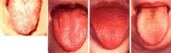 язык при молочнице у ребенка фото