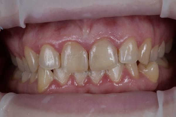 Реставрация зуба с резорбцией корня и отсроченная имплантация