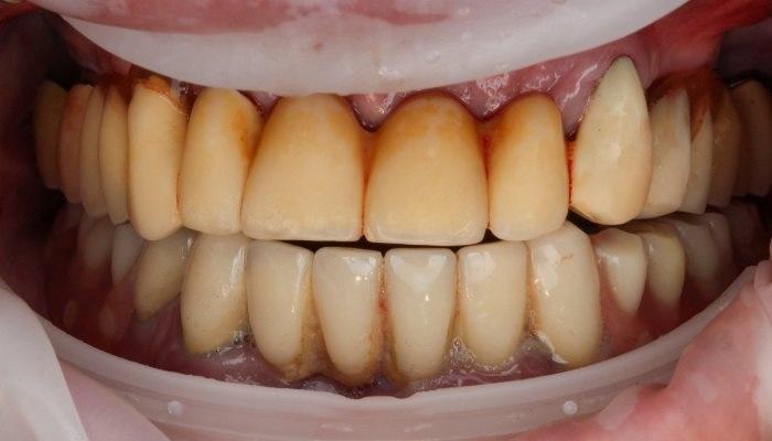 Реабилитация на 4-х имплантатах на верхней и нижней челюсти